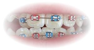 ortodontie1