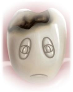 carie dentara1 CP