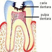 endodontie4 CP