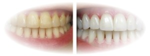 estetica dentara1 CP