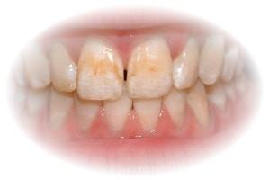 estetica dentara2 CP