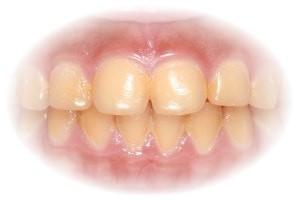 estetica dentara3 CP