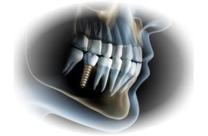 implanto1