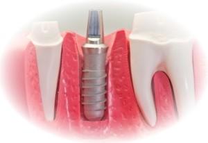 implanto2