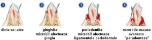 parodontologie3